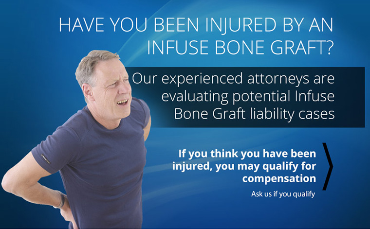 ave You Been Injured by an Infuse Bone Graft?