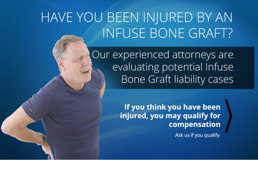 Have You Been Injured by an Infuse Bone Graft?